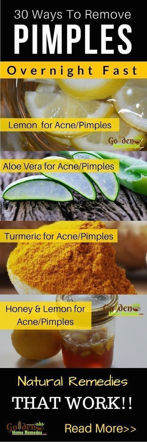 Pimples, Acne Treatment, 30 Natural Remedies To Ge…