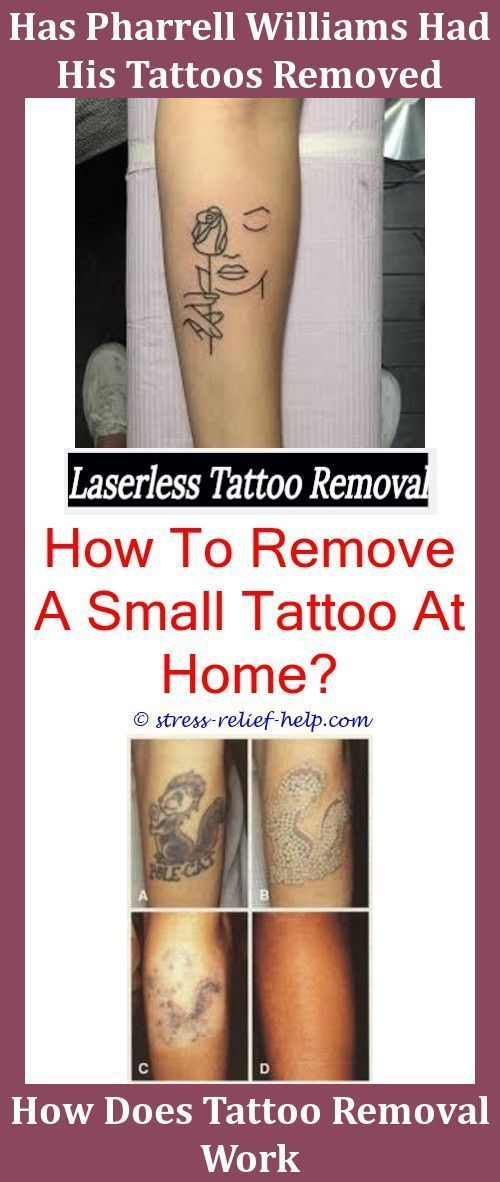 Temporary Tattoos Tattoo Removal Winnipegtattoo Removal Black Ink
