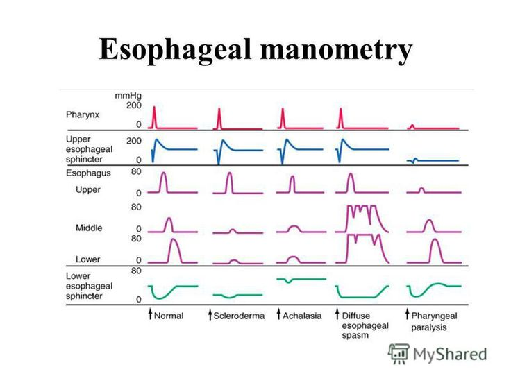 Esophageal Manometry Test and Results - WebMD