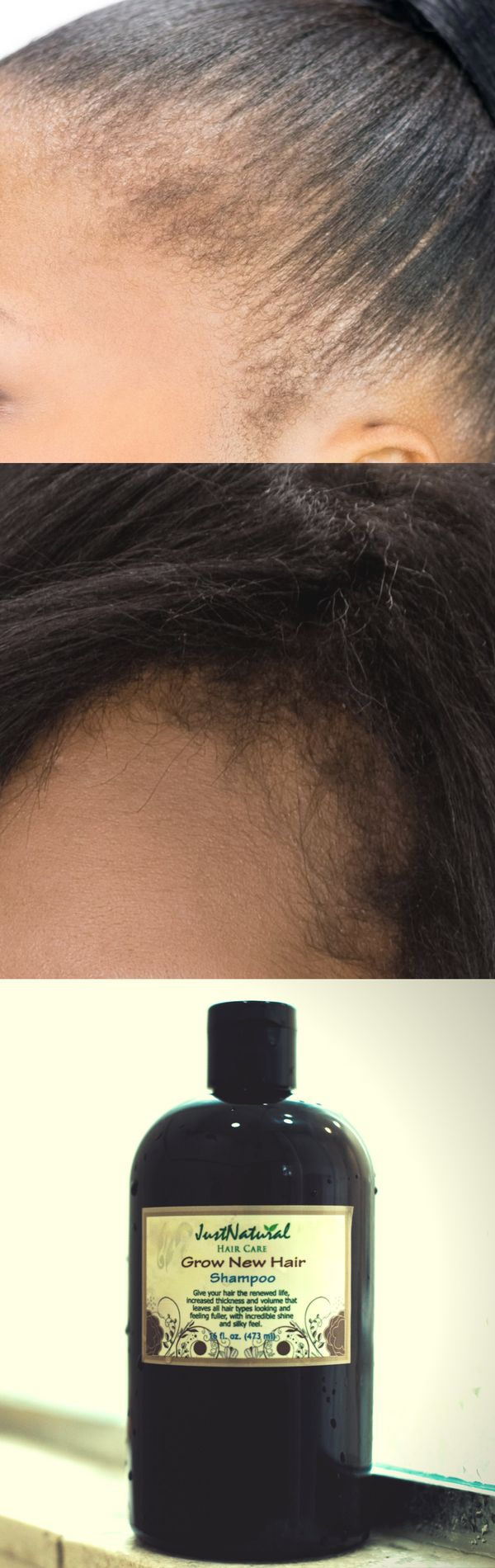 I have had hair fall at the roots for a few years due to long term stress, medications and illness. I've tried many products (including Minoxidil) and they don't grow the hair back quickly like this one does. I've used it about 6 times since getting it and I already have small hairs growing in all over my scalp in between all the long hairs that are left. I must say though I am using this shampoo in conjunction with the treatment spray.