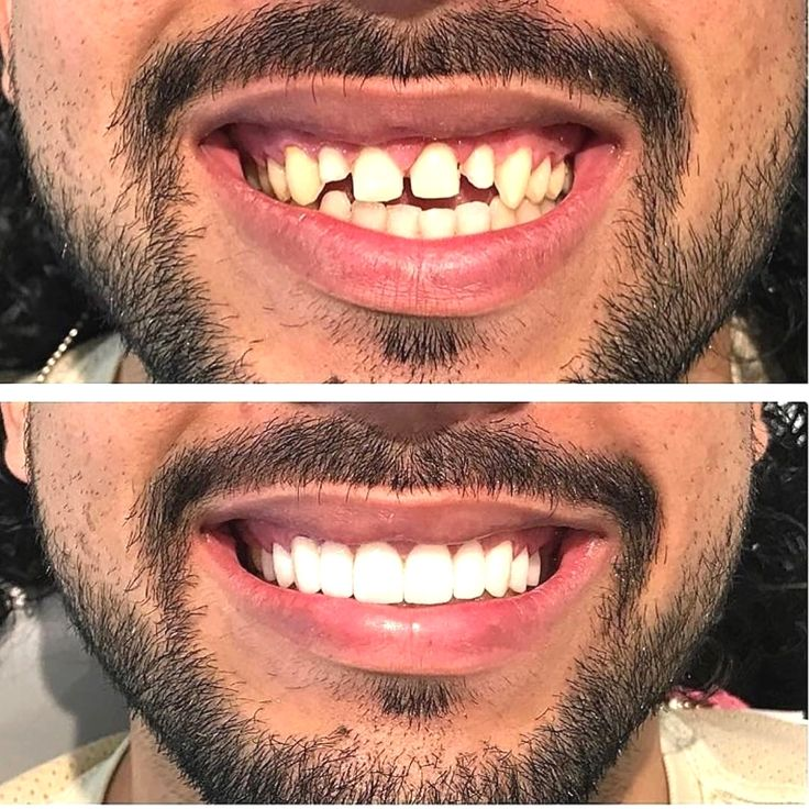 I love this transformation  Via @drviotto  Tag someone  Via @dentistrymyworld  DoubleTap & Tag a Friend Below  Follow us if you love  Update pictures everyday   #dentistry #dentist #odontologia #dental #odonto #tooth #dentista  #odontolove #odontoporamor #teeth #ortodontia #dentalstudent #dentalhygiene #odontologo #orthodontics #prosthodontics #oralsurgery #dentalassistant #odontologiaestetica  #implant #dentalschool #odontolovers #dentistrymyworld #cirugiabucal #braces #prosthesis…