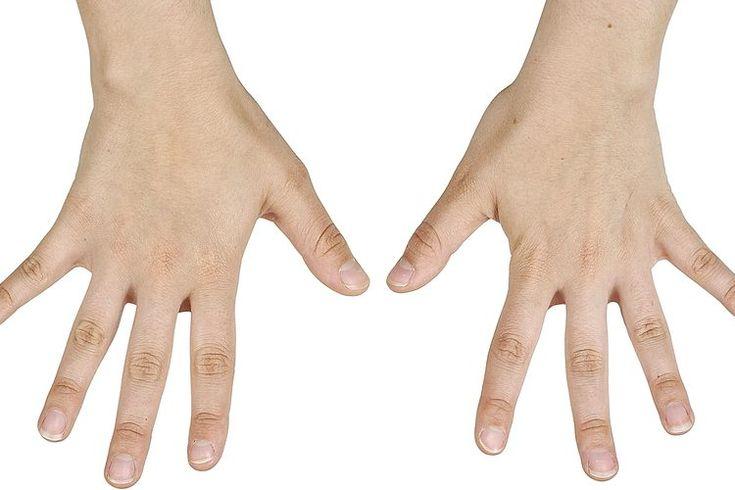 Parestesia ascendente causada por el ejercicio. La parestesia es un entumecimiento o sensación de hormigueo que más frecuentemente ocurre en las manos, brazos, pies y piernas. Esto significa que el entumecimiento comienza en tus extremidades inferiores y se extiende a través de tu cuerpo. Este ...