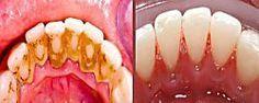 Una forma rápida de eliminar el sarro de los dientes