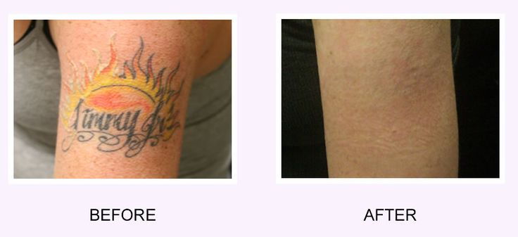 17 best ideas about tattoo removal cost on pinterest for How effective is tattoo removal cream