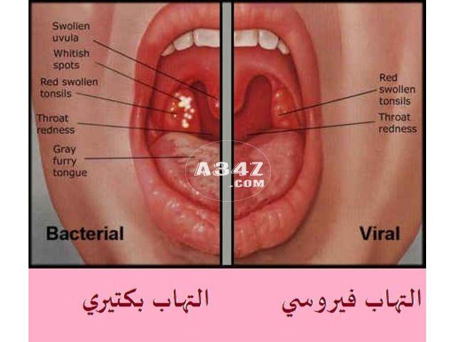 التهاب الحلق واعراضه والوقايه منه Swollen Uvula Swollen Tonsils Redness