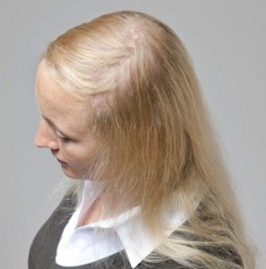 40 Haarersatz Moderne Haarsysteme Und Haarverdichtung Svenson In 2020 Haare Haar Styling Haarausfall
