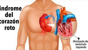 Síndrome del corazón roto: ¿Se puede morir de un corazón roto?