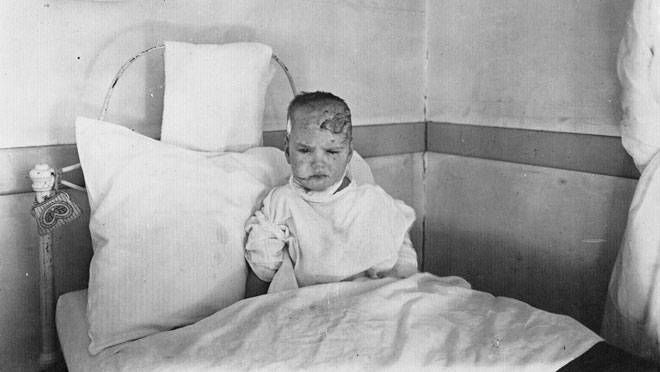 A victim of the Halifax Explosion sits up in a hospital bed, likely at Pine Hill Convalescent Hospital where injured babies were treated. In 2008 we learned the girl was Kathleen Malloy. (City of Toronto Archives)
