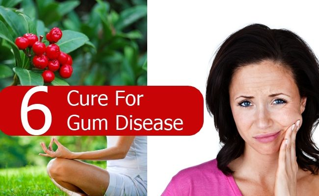 Whether you are suffering from widening space between teeth and gums, chronic bad breath, receding gums, bleeding while brushing or swollen gums, you will be glad to know that there are several natural remedies that can treat such conditions quite effecti