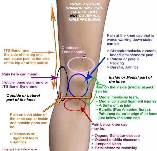 1000 images about knee pain on pinterest knee pain runners and  : knee pain diagram - findchart.co