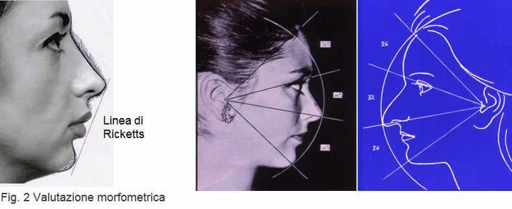 Risultati immagini per rinoplastica e mento insieme