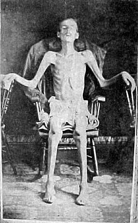 Civil War Starved Prisoners   ... January of the 14th Illinois Cavalry, former prisoner of Andersonville
