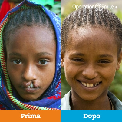 Arifase ha13 anni e vive in un villaggio in Etiopia. Emarginata a causa del suo labbro leporino, teneva sempre il viso nascosto con una sciarpa, ma veniva comunque presa in giro dagli altri. Non riusciva a parlare bene e per questo non frequentava la scuola. Poi un giorno la sua famiglia è venuta a sapere di una missione di Operation Smile. Oggi Arifase è impegnata a recuperare il tempo perduto: va a scuola ed è piena di amici