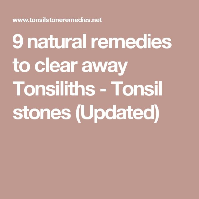 How To Get Rid Of Tonsiliths Naturally