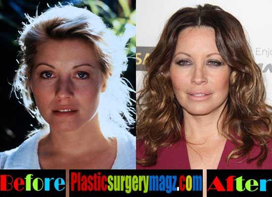 Linda Kozlowski Plastic Surgery Gone Wrong Plastic