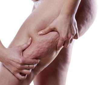 """Top 14 Home Remedies for Cellulite That Work a Treat! --- Discover the best performing home remedies for cellulite reduction in this """"must read"""" article. Each natural remedy has a proven success rate when used correctly..."""