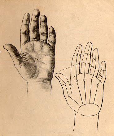 Foto: 15.- Parte interior de una mano en ligera flexión. Podemos ver de un modo palpable la tendencia de los dedos índice, anular y meñique a inclinarse hacia el dedo de en medio, y en el esquema de la derecha las crucecitas indicando la unión de los  metacarpianos con los dedos.
