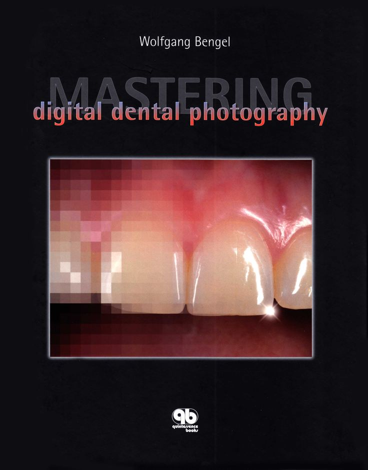 Title: Mastering Digital Dental Photography Author: Wolfgang Bengel Publisher: Quintessence Publishing ISBN: 1-85097-152-8 Year: 2006 http://www.quintpub.com/display_detail.php3?psku=B4195#.Unap8ZE6JFw