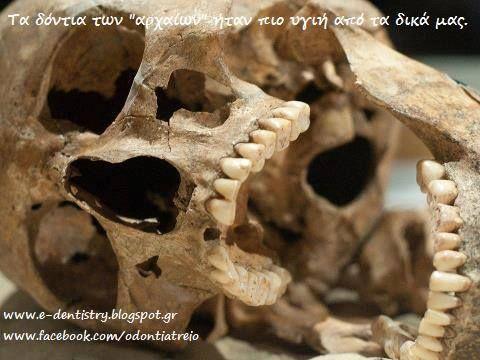 Οι προϊστορικοί άνθρωποι δεν είχαν οδοντόβουρτσες. Δεν είχαν νήμα ή οδοντόκρεμα και σίγουρα δεν είχαν στοματικό διάλυμα. Ωστόσο, κατά κάποιο τρόπο , τα στόματά τους ήταν πολύ πιο υγιή από ότι τα δικά μας είναι σήμερα .