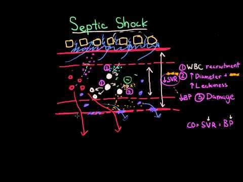 (2) Septic shock - pathophysiology and symptoms | Shock | Khan Academy All Khan Academy content is available for free at www.khanacademy.org