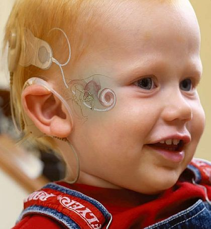 Cochlear Implant: an interesting look of what the surgically placed implant looks like via an artists rendering atop the face of a very young child: see the internal components within the inner ear as well as the outer components -magnet- and the pieces connecting the two beneath the surface. A rarely seen and unique view.