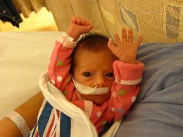 "One of my favorite things about preemies: they put up their hands when they want you to leave them alone. We call it their ""stop signs."" Interacting With Your Premature Infant: Developmental Care in the NICU"