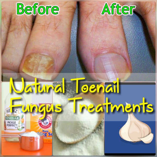 Finger Nail Fungus Home Remedy In 2020 Nail Fungus Remedy