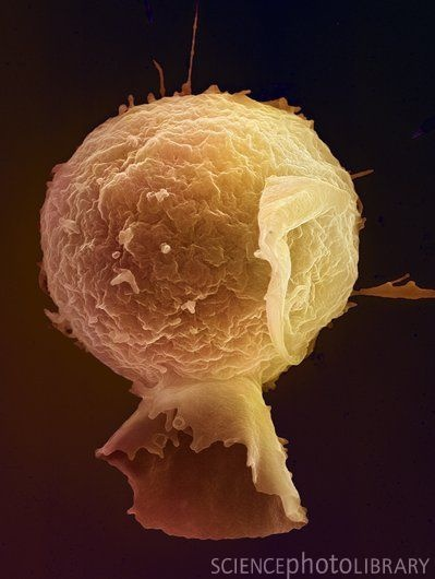 Lymphocyte. Coloured scanning electron micrograph (SEM) of a lymphocyte white blood cell. Lymphocytes are involved in the immune system's defence mechanisms, lymph system, and involved in antibody production.
