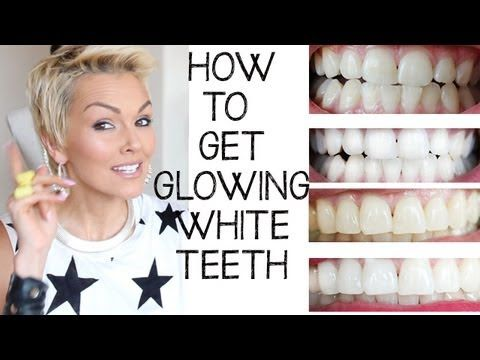 ▶ How I Whiten (Bleach) My Teeth - YouTube