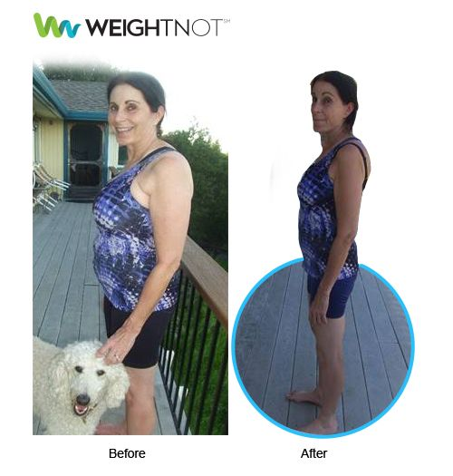 """Lost 4 pant sizes!""  WeightNot Member Message: I tried many ways to lose weight over the past 5 years. I am a runner, but I had GAINED weight after training and completing my 1st marathon! And continued to gain weight after competing in 3 additional half marathons! I first tried over the counter ""supplements"" which didn't work at alI. I tried Nutrisystems and lost only 10 lbs. I tried HCG Detox and only lost 5 lbs! I tried Weight Watchers and only lost 10 lbs. Then I heard about WeightNot…"