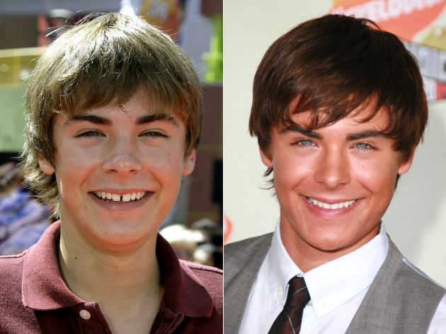 Celebrity Teeth: Before and After Veneers - Because celebs want the perfect smile, most of them end up with veneers, or even more dental work. See the before and after pics for a few celebrity smiles.