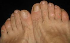 How to use home remedies to get rid of corns? On the off chance that you are dynamic, it is typical that you may develop corns on your feet and hands ...