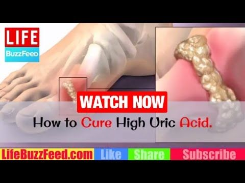 HOW to CURE High Uric Acid? Foods to AVOID with Gout? How to LOWER Uric Acid Levels & GOUT Treatment https://homeremediestv.wordpress.com/2017/04/19/how-to-cure-high-uric-acid-foods-to-avoid-with-gout-how-to-lower-uric-acid-levels-gout-treatment/ #HealthCare #HomeRemedies #HealthTips #Remedies #NatureCures #Health #NaturalRemedies  #HealthCare #HomeRemedies #HealthTips #Remedies #NatureCures #Health #NaturalRemedies  http://HomeRemediesTV.com/Best-Supplements HOW to CURE High Uric Acid?…