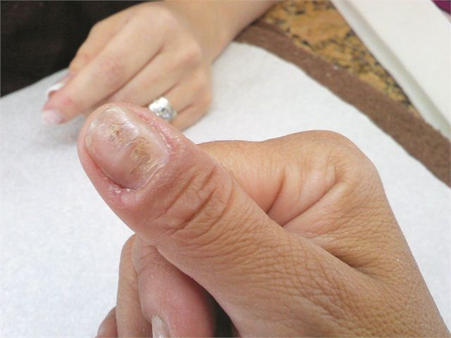 What is causing the deep horizontal ridges and swollen cuticles in my client's nails