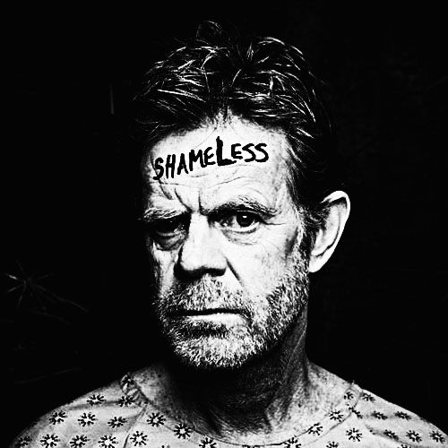 """ Frank has health care issues. #Shameless """