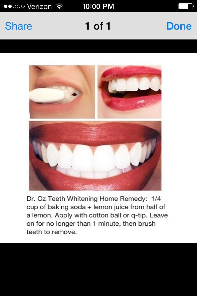 How To Get Your Teeth White !