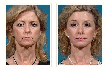 1 year result after face/neck/brow lift with upper and lower eyelid surgery. She had perioral Erbium laser resurfacing as well. The goal is natural restoration such as seen here.