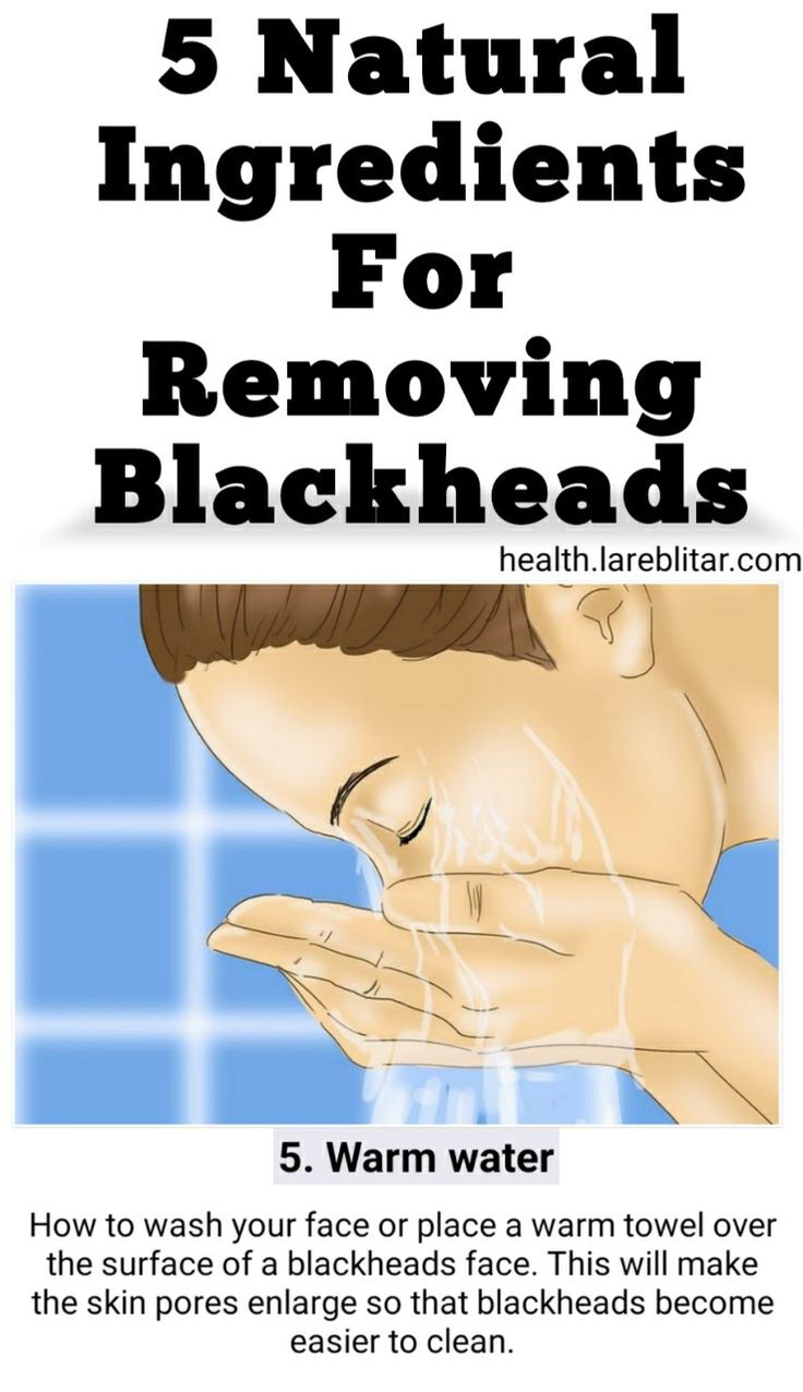 Natural ingredients for removing blackheads