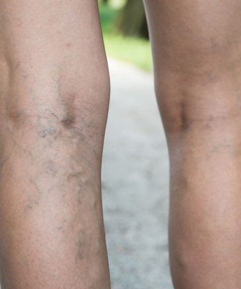 Lumpy, twisted veins can make your legs heavy and painful. Here are some home remedies for varicose veins including exercises and other tips that can help.