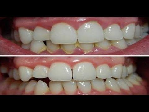 Clean and check your teeth white with 1 single natural ingredient