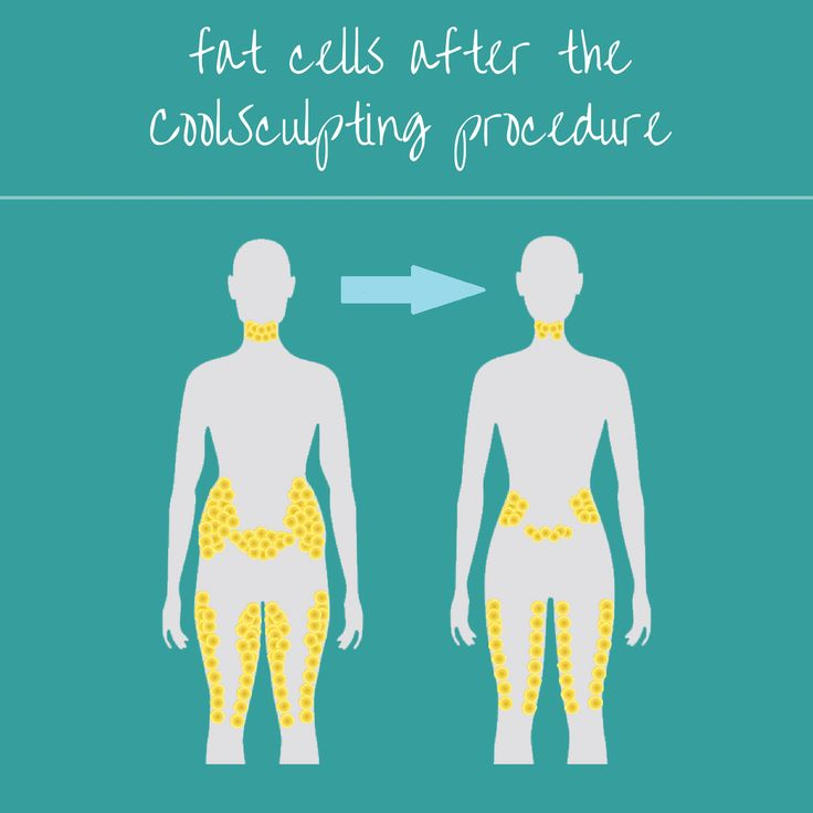 Want to know what happens to your fat cells after CoolSculpting procedures? Visit our site to learn more!