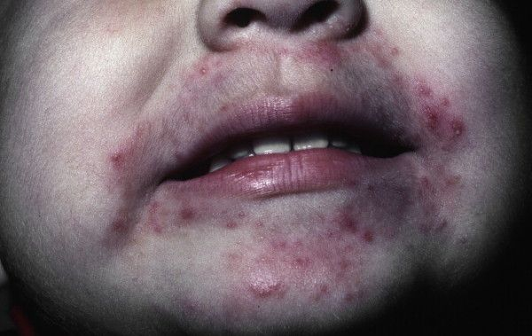 If you have developed a rash around your mouth, it could be due to several reasons. Sun creams, toothpaste, makeup, poison ivy or perioral dermatitis are some of the reasons for rashes around the mouth. It is not advisable to ignore rashes around your mouth.