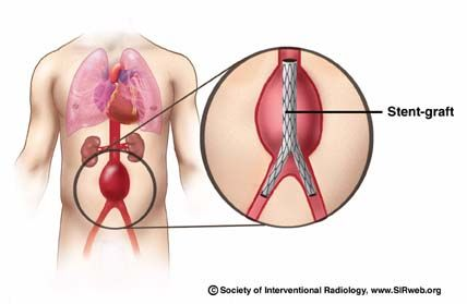Abdominal Aneurysm Signs and Symptoms | Abdominal aortic aneurysm. Causes, symptoms, treatment Abdominal ...