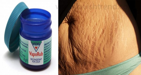 Cool HOW TO USE VICKS VAPORUB TO GET RID OF ACCUMULATED BELLY FAT AND CELLULITE, ELIMINATE STRETCH MARKS AND HAVE FIRMER SKIN