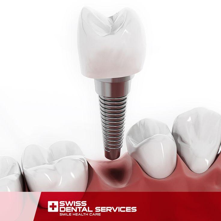 Saviez-vous que les implants dentaires sont réalisés par le processus d'osséointégration? www.swissdentalservices.com/fr