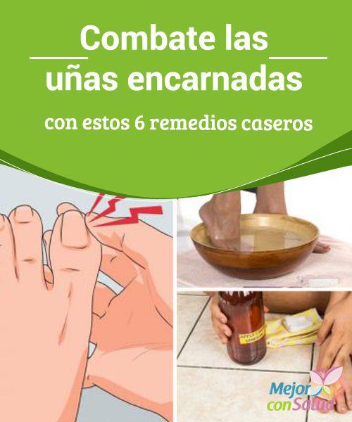 El tratamiento del calzado por el vinagre al hongo de los pies