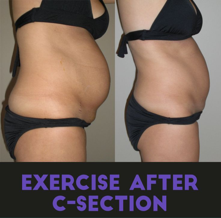 Easy detox weight loss program