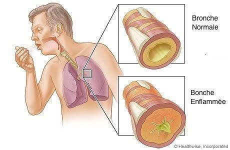 bronchite-chronique