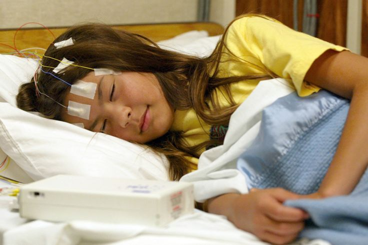 Idea by united sleep centers on sleep study epilepsy