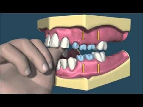 Az ujjszopás káros következménye a fogsorra.
